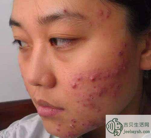 脸上的暗疮怎么去除_脸上长痘痘怎么办 大学生都在使用的简单有效的祛痘方法 - 科妆网